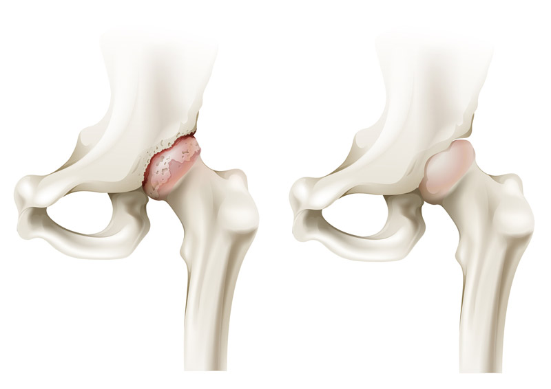 arthrite.jpg